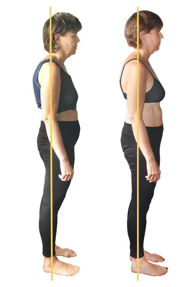 Before and after years of yoga, stretching and fitness exercises  and AFTER just a few weeks of FitAlign