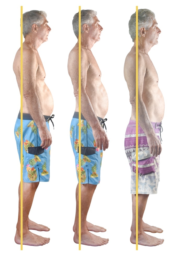 Ken, lifelong surfer, and furniture builder   Rotator cuff injury kept him out of the water for almost a year. In 3 sessions, he is surfing, toned and biologically decades younger