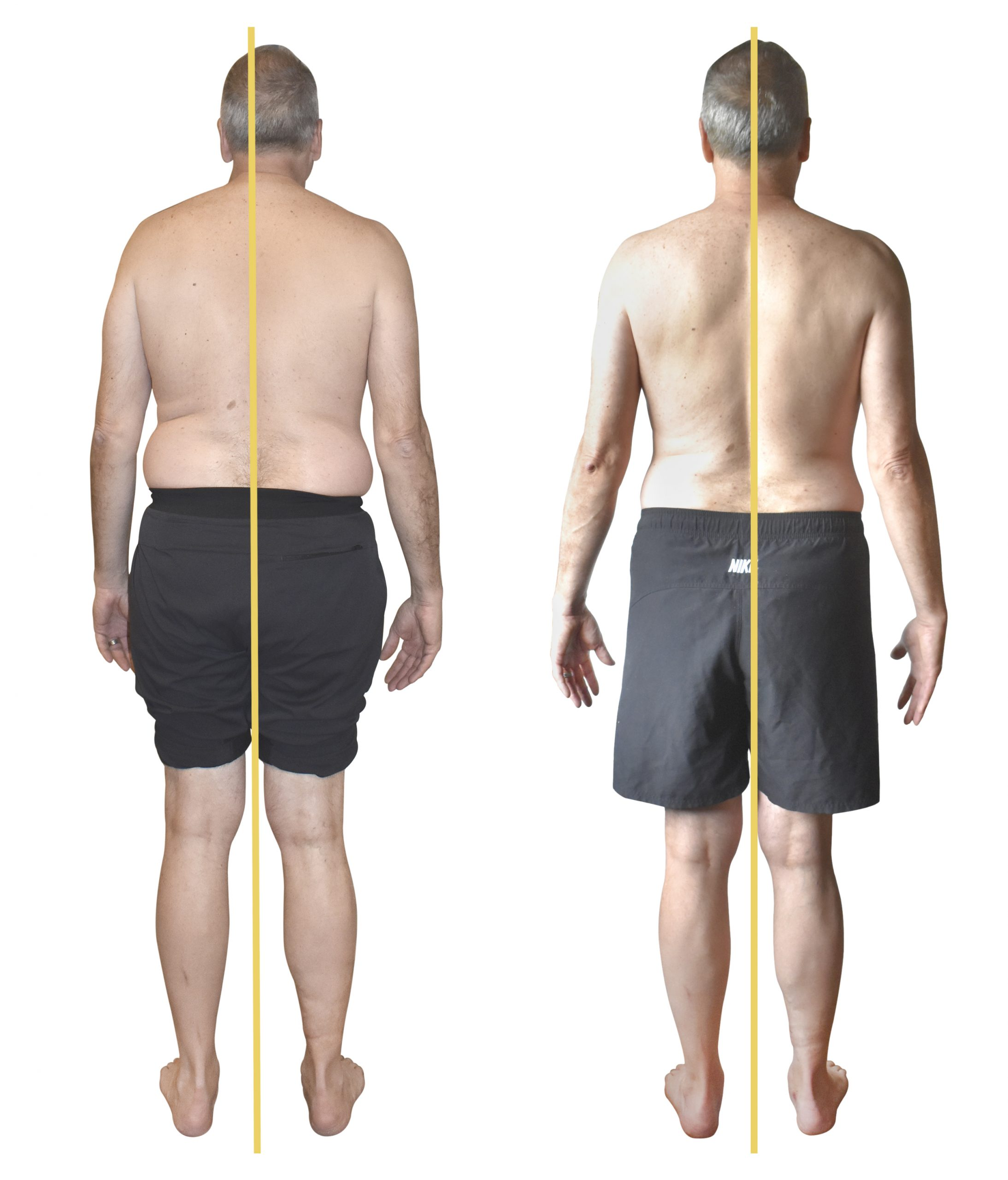 Joe changed his posture, got out of pain and  changed his life in less than two weeks without dieting, stretching or sweaty gym exercises. Using FitAlign's breath based repatterning, Joe rewired his brain to enlist his muscles creating body wide balance tone and upright posture.