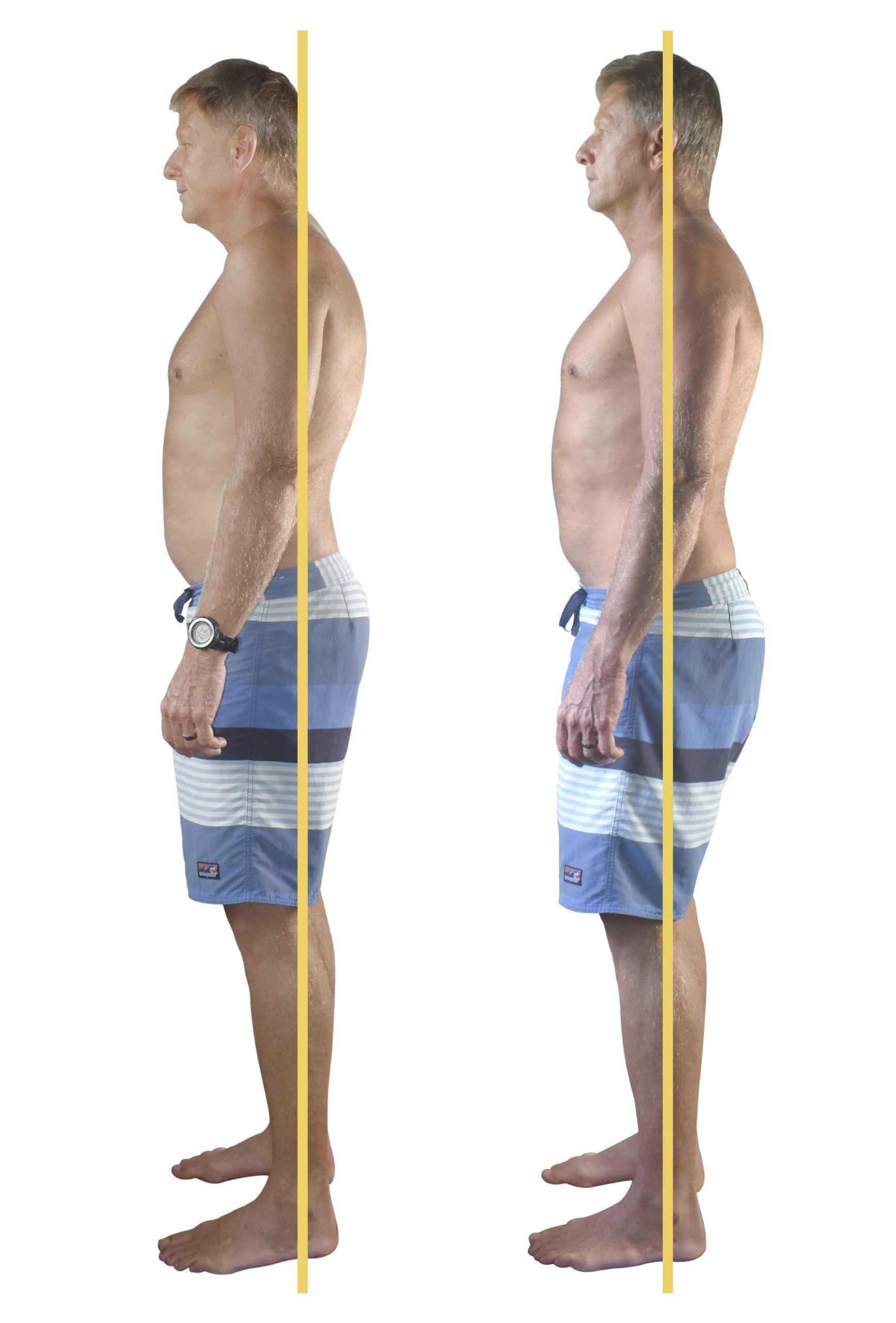 John, a professional firefighter with sciatica pain.Sculpted, toned and pain free in less than a week!